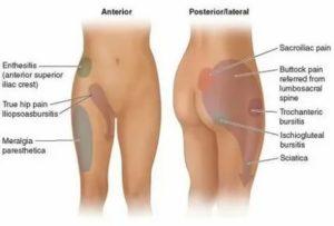 Болит область паха и правая нога, что это может быть?