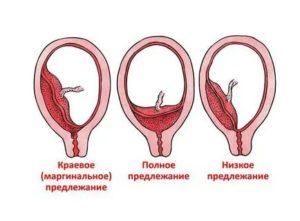 Опасно ли полное предлежание хориона на 13 недели беременности?