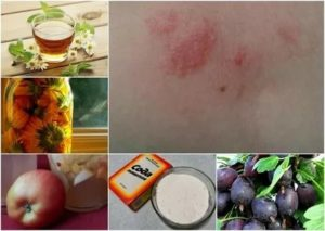 Аллергия на эхинацею