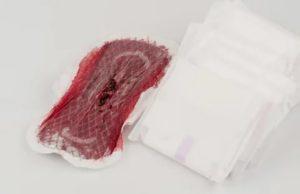Сильно болит живот во время месячных, выходят сгустки крови