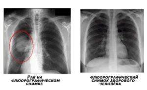 Объясните результат рентгенографии легких