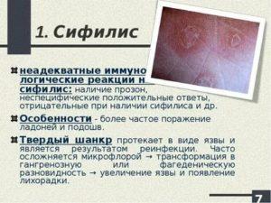 Подозрение на сифилис