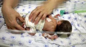 Есть ли шанс что ребенок выживет после рождения?