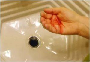 Мокрота с прожилками крови при беременности