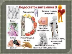 К какому врачу обращаться по поводу недостатка витамина Д?