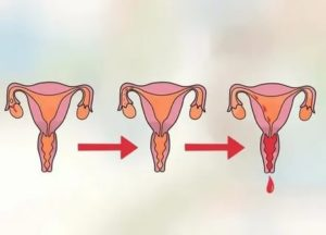 Что может служить причиной задержки менструации у девственницы?