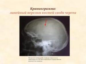 Краниограмма