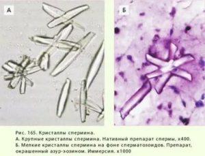 Кристаллы Бехтера в спермограмме