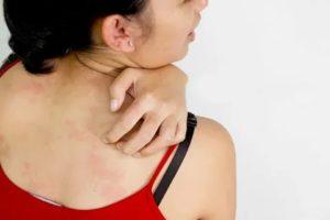 Как уменьшить зуд кожи?