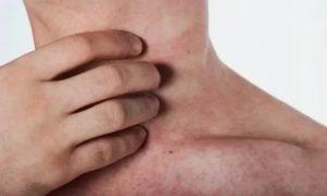 Сыпь после дексаметозона