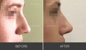 Белеет кончик носа