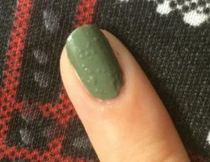 После нанесения гель-лака под ногтями появились пузыри