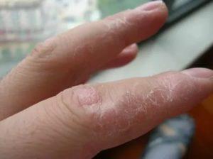 Зудит и трескается кожа