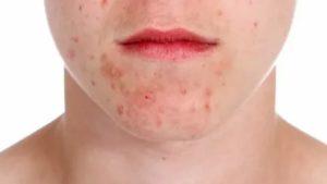 Могут ли кожные высыпания на лице быть из-за инфекции?