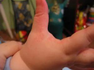 Сыпь между пальцами у ребенка