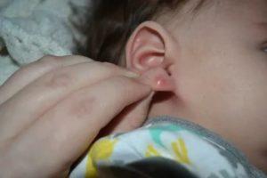 Что-то появилось за мочкой уха