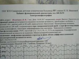 Помогите, пожалуйста, расшифровать ЭЭГ
