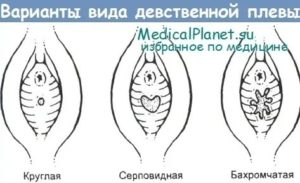 Беременность при лишении девственности без ПА