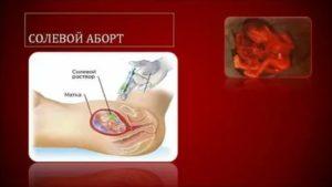Аборт на 13-й неделе беременности