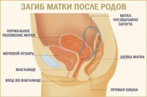 Аборт при загибе матки, 11 недель