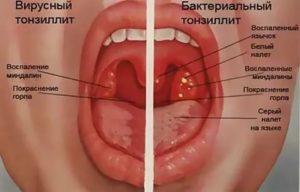 Шипит в горле,  к какому врачу обращаться с такой проблемой?