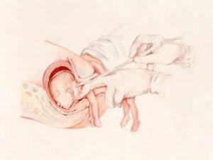 Беременность после двух абортов