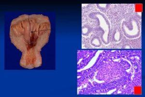 Гиперплазия эндометрия у девочки-подростка