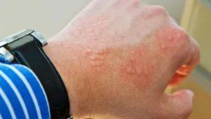 Может ли это быть аллергическая реакция на пыль марганца?