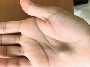 На руках и на ладонях появились синие вены, что это может быть?