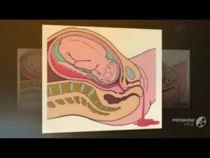 Боли внизу живота на 36 неделе беременности