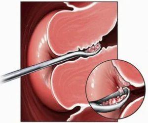 Месячные после удаления полипа эндометрия