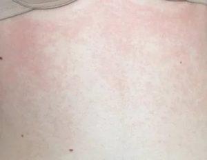 Сыпь на коже при простуде