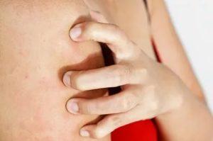 Аллергия на инъекции В12