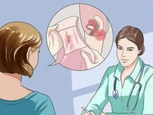 Кровит после мазка, беременна