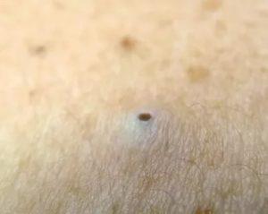 Черный прыщ на пенисе