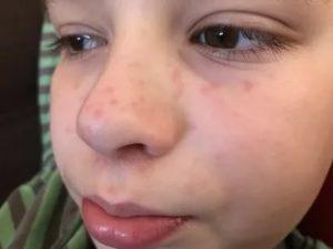 У ребенка сыпь около носа