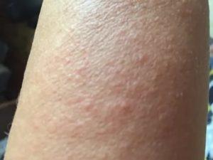 Сыпь на ногах, чем мазать?