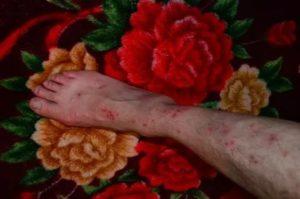 Расчесала кожу до крови