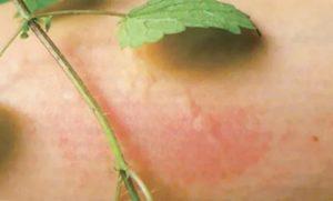Крапивница на фоне проблем с желчным пузырем