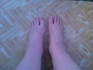 Сильные отеки ног на 39-й неделе