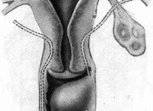 Появилась шишка с перепелиное яйцо на входе во влагалище