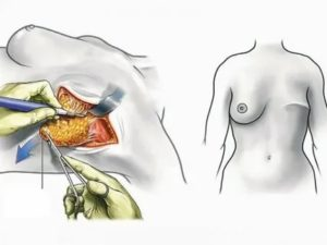 Правда ли, что ли после удаления матки высока вероятность остеопороза и рака молочных желез?