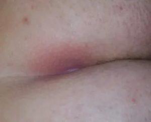 Болячка на ягодице
