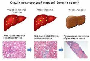 Поставили жировой гепатоз и липоматоз поджелудочной железы, какое лечение посоветуете?
