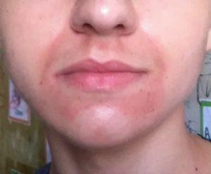 Темная окраска кожи вокруг рта