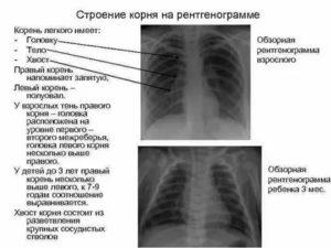 Что значит корни малоструктурные на рентгене?