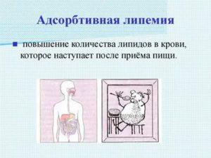 Липемия