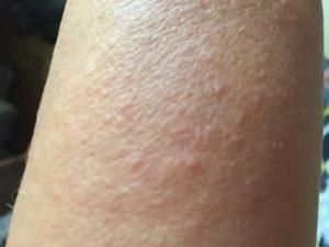 Сыпь на руках с белыми точками