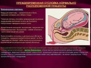 Отек плаценты при беременности