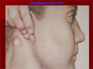 Болят ли лимфоузлы при сифилисе?